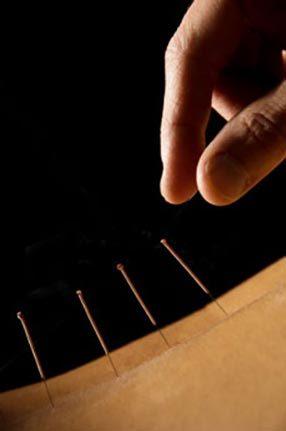 acupuncture-286